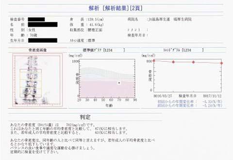 骨密度測定結果の例