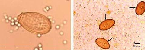 (左)肝吸虫卵 (右)横川吸虫卵 無染色600倍