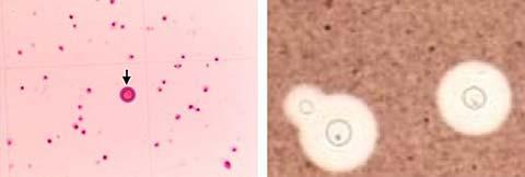 (左)髄液検査(鏡検中の計算盤内) (右)髄液検査