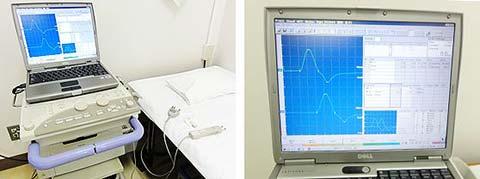 神経伝導検査機器